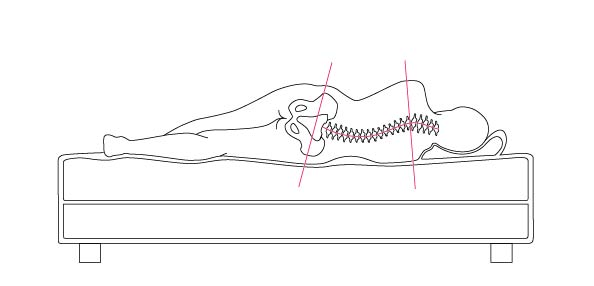 Illustration of a body lying on a firm bed showing a curved spine